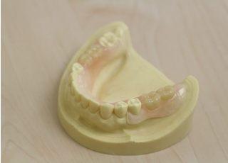 むらかみ歯科医院_入れ歯・義歯2