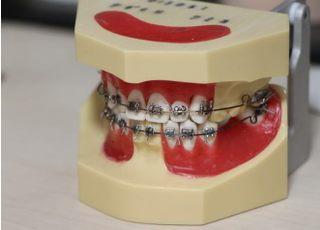 ユニバ通り むらせ歯科クリニック_矯正歯科3
