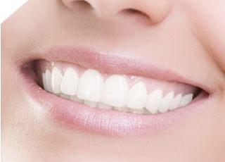 歯科ニュージャパン上杉_ホワイトニング
