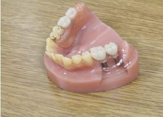 タカシマ歯科・矯正歯科_被せ物・詰め物2