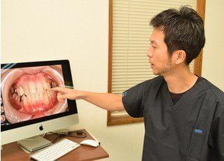 花岡歯科医院_お口の中の状態が分かるように