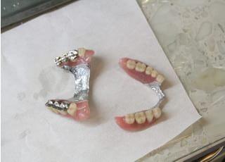 ノアデンタルオフィス_入れ歯・義歯3