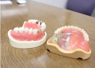 実際の入れ歯やセラミックを見ることができます。