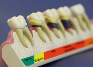 吉本矯正・歯科_治療品質に対する取り組み1
