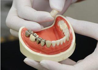 聖和歯科クリニック_治療の事前説明4