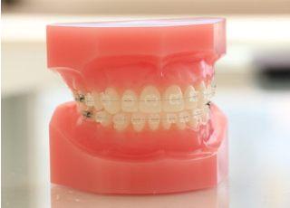 こうの矯正歯科クリニック治療の事前説明1