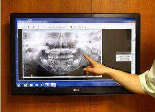 井上歯科診療所_治療の事前説明3