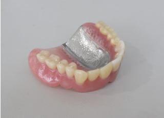 こまつ歯科医院_入れ歯・義歯3