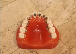 ティースアート矯正歯科 渋谷_ティースアートの矯正器具での治療の特徴