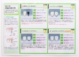 糸井歯科 つめ物・かぶせ物