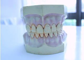加々見歯科_入れ歯・義歯2