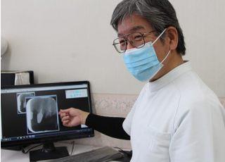 ないとう歯科医院_入れ歯・義歯4