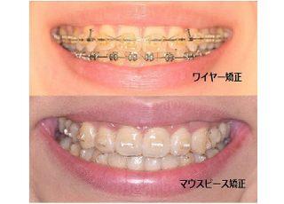 中西歯科矯正歯科 矯正歯科