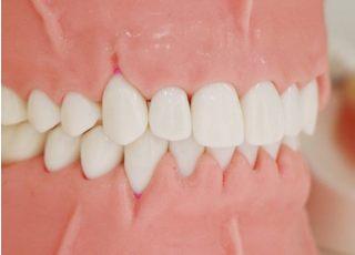ボンベルタ歯科クリニック_歯周病3