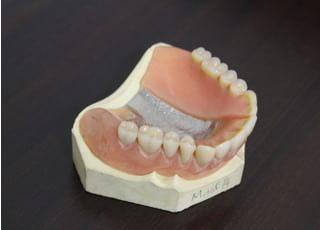 しっかり噛めて見た目もよい、金属を使わない義歯もあります