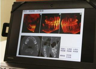 ジャスミン歯科クリニック インプラント