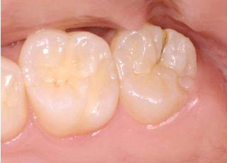 敬天堂歯科医院_虫歯の治療11