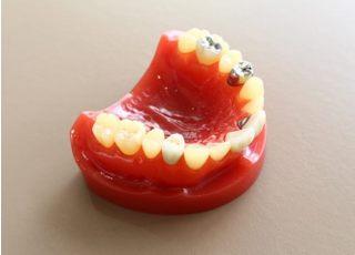横浜いせざき歯科クリニック_つめ物・かぶせ物4
