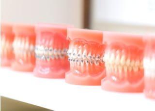 きたざわ歯科_矯正歯科1