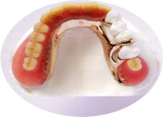 きたざわ歯科_入れ歯・義歯2