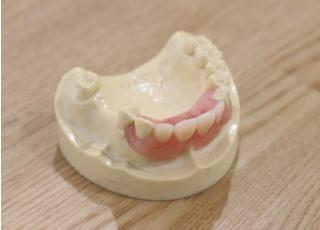佐藤歯科医院_入れ歯・義歯3