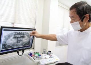 木村歯科医院インプラント2