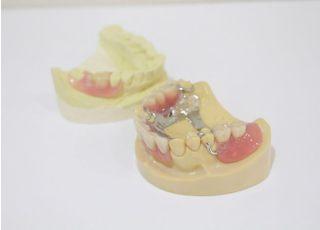 勝畑歯科医院入れ歯・義歯3