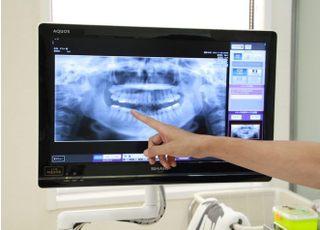 勝畑歯科医院治療の事前説明2