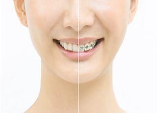 くぼた矯正歯科クリニック矯正歯科1