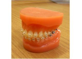 くぼた矯正歯科クリニックワイヤー矯正3