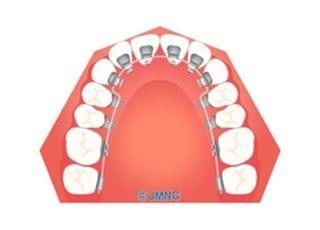 くぼた矯正歯科クリニック裏側矯正4