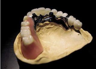 中野歯科医院入れ歯・義歯4