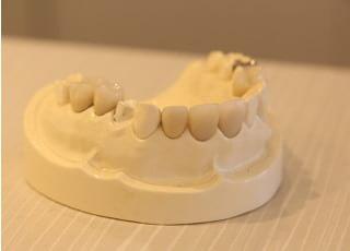 てるや歯科_被せ物・詰め物2