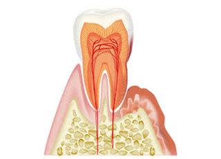 ゆきあい歯科クリニック_歯周病2