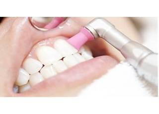 あかつき歯科クリニック_予防歯科4