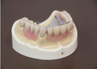 高木歯科医院_全体的な噛み合わせを確認しながらの徹底した治療