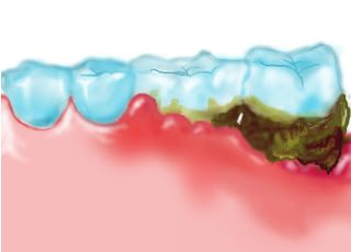 ざいもくちょう歯科 歯周病