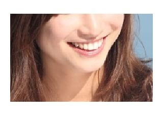 こいわ歯科クリニック美容診療2