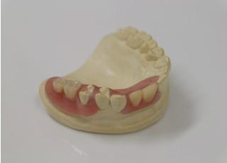 吉祥寺まさむねデンタルクリニック歯を失った時の治療3