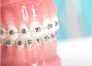 あかつき歯科クリニック_矯正歯科1