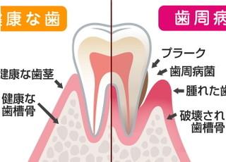 くにみ野さいとう歯科医院_歯周病3
