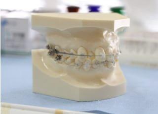 日本橋りゅうデンタルクリニック矯正歯科2
