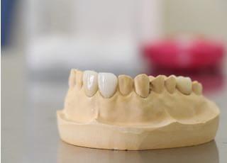 中村歯科クリニック_つめ物・かぶせ物2