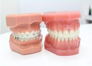 とくがわ矯正歯科クリニック(矯正専門)_ワイヤー矯正3