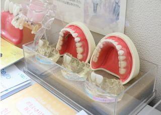 あべ歯科クリニック_患者さまの要望に応えるための治療