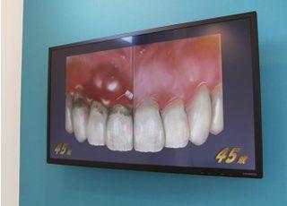 なりた歯科クリニック_治療の事前説明3