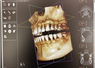 みむら歯科医院_インプラント1