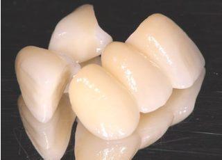 たか歯科医院_つめ物・かぶせ物4