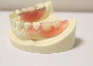 山口歯科医院入れ歯・義歯4