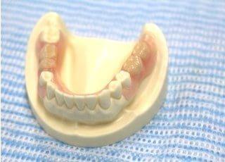 高橋歯科医院_入れ歯・義歯3
